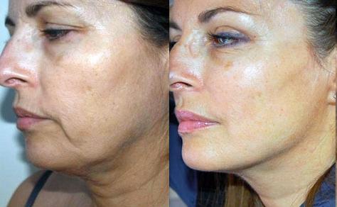 French Lift Chirurgie esthétique visage
