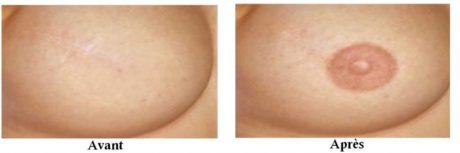 reconstruction aréoles mammaires cancer sein