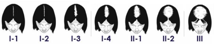 calvitie echelle ludwig e1509158372512 - La calvitie et perte de cheveux  : sources et solutions pour les femmes