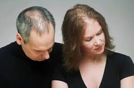 calvitie femme femme - La calvitie et perte de cheveux  : sources et solutions pour les femmes