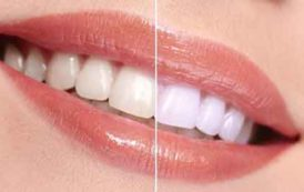 Le blanchiment des dents pour un sourire ultra bright ?