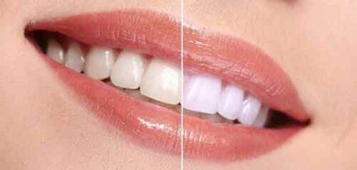 blanchiment dents 500x239 - Le blanchiment des dents pour un sourire ultra bright ?