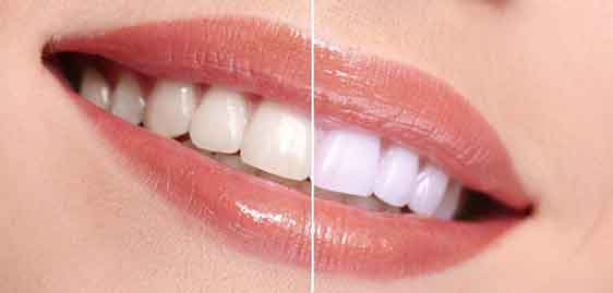 blanchiment dents - Le blanchiment des dents pour un sourire ultra bright ?