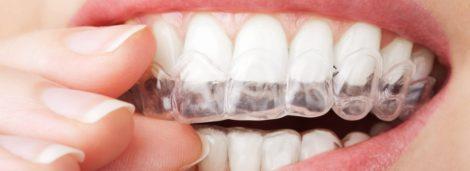gouttière blanchiment dents