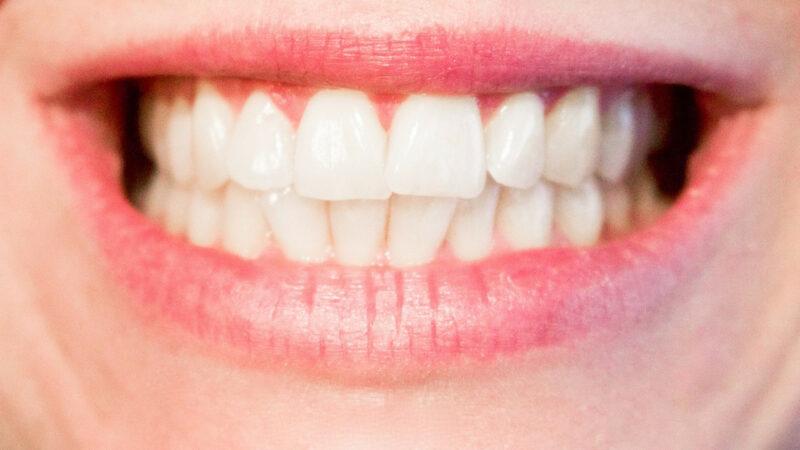 6923a579ca2ece2d7acb3bbb74589cd5 800x450 - N'ayez plus peur de sourire grâce à l'implant dentaire