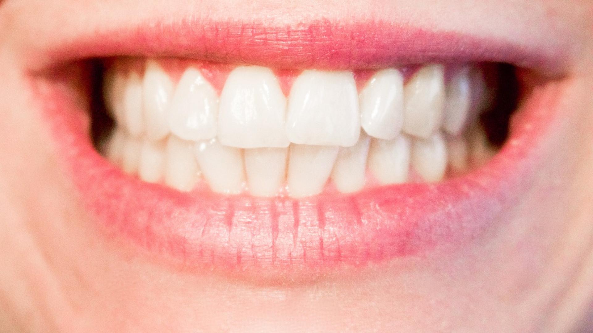 N'ayez plus peur de sourire grâce à l'implant dentaire