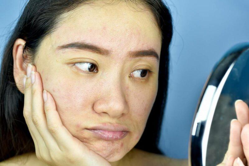 peau terne en hiver que faire 800x533 - Peau terne en hiver : que faire ?