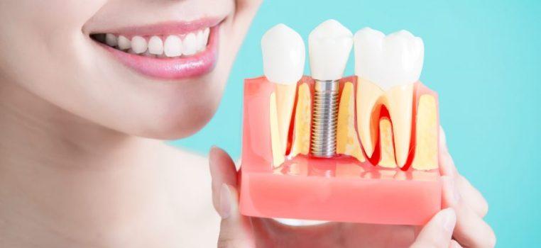 Pourquoi choisir les implants dentaires pour votre bien-être?