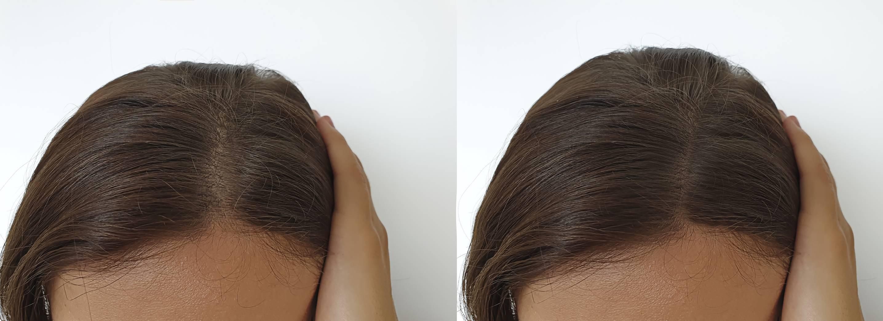 image capillaire greffe - La greffe capillaire fait-elle mal ?