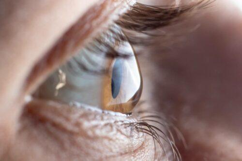 privilege operation yeux 500x333 - Opération des yeux : est-ce un privilège ?