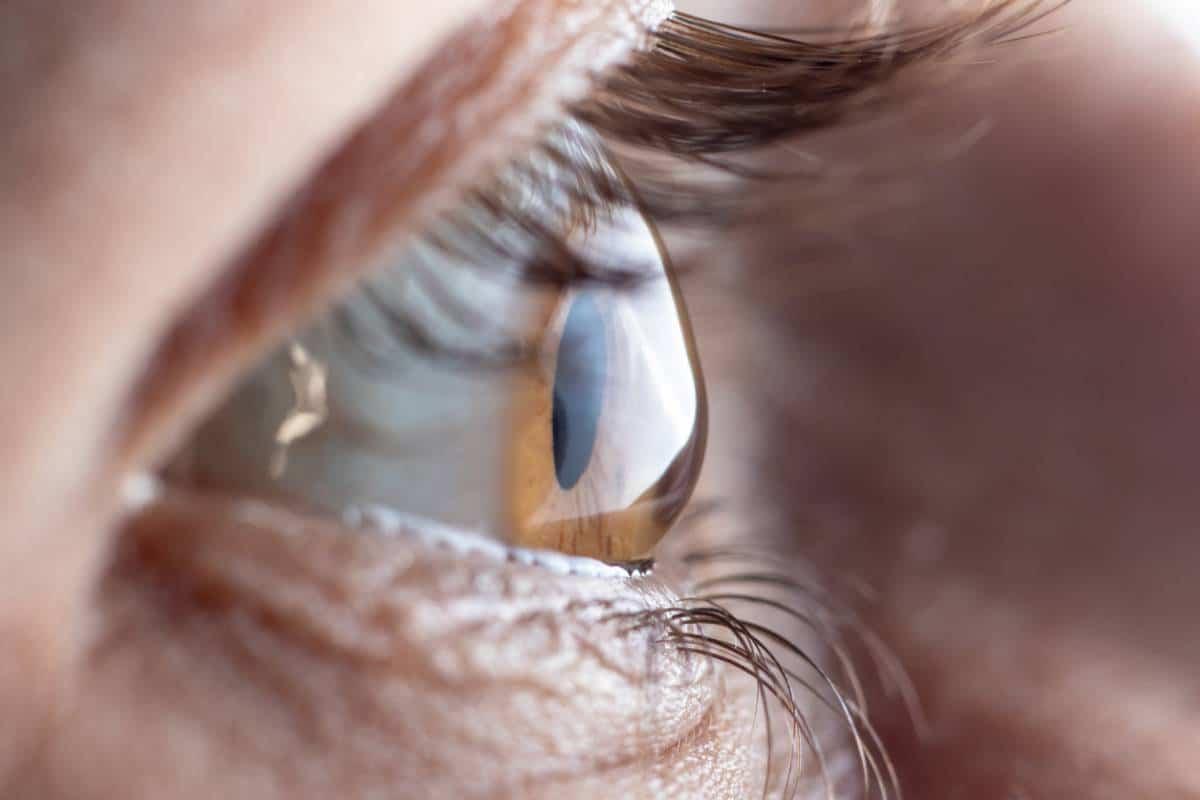 privilege operation yeux - Opération des yeux : est-ce un privilège ?